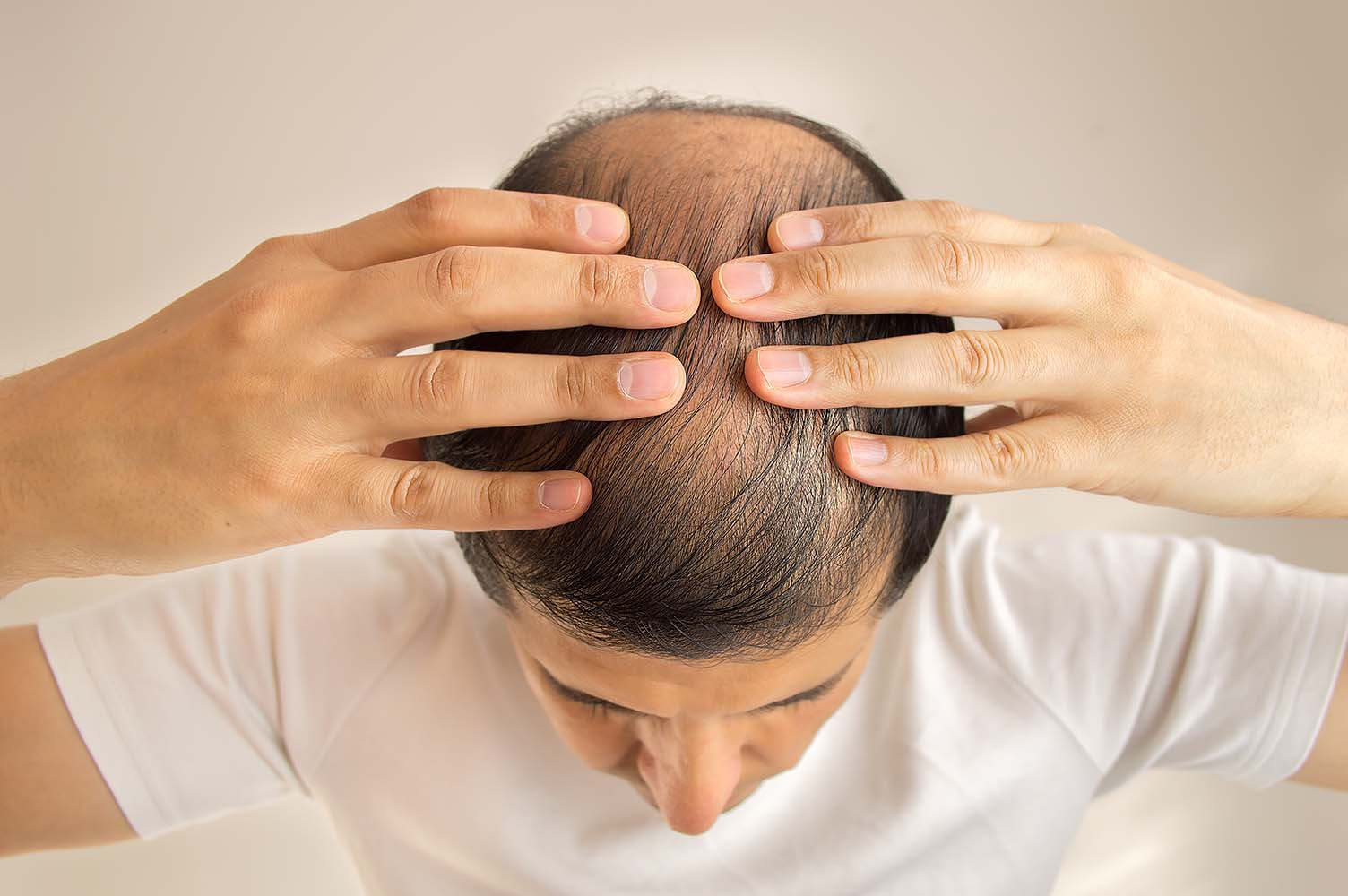 Antidepressants and Hair Loss