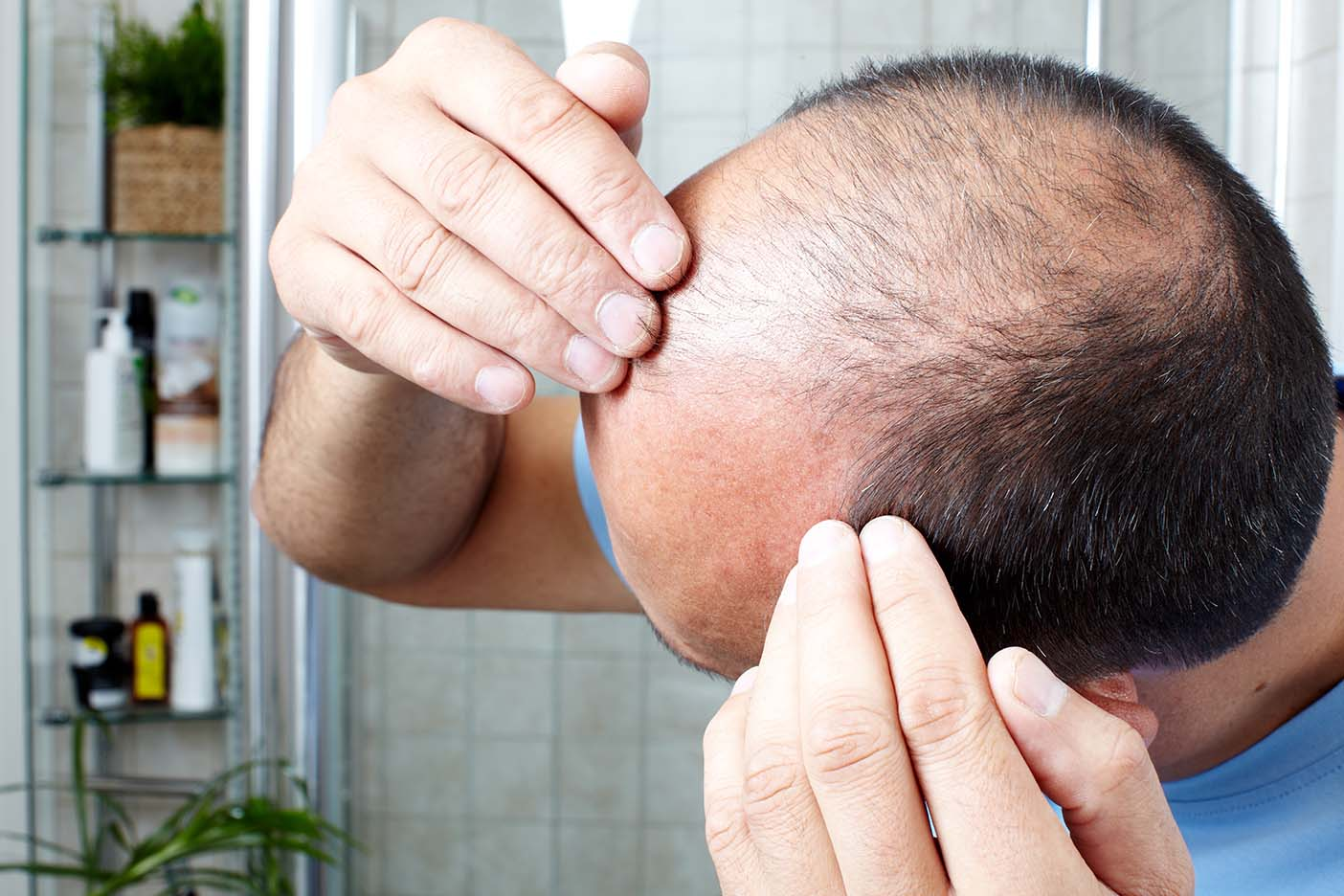 Types of Hair Loss that Cause Scarring